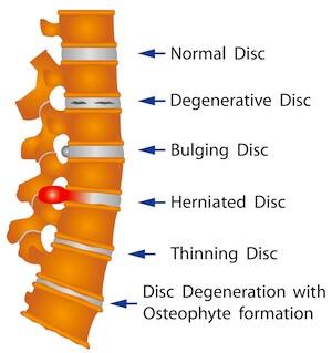 illustration der viser rygsøjlen